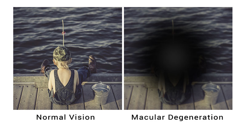 macular-degeneration-treatable-adult-eyecare-local-eye-doctor-near-you-small.jpg